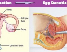 Egg donation in Lebanon