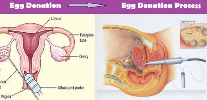 Egg donation in Lebanon, Egg donation Lebanon